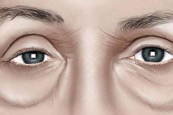 göz altı torbasının nedenleri